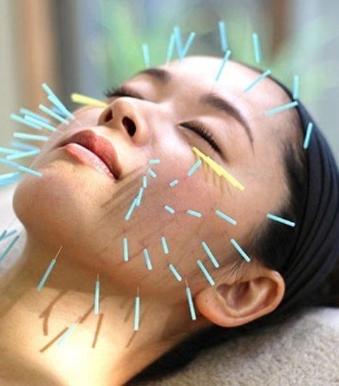 美容鍼と立体動態波