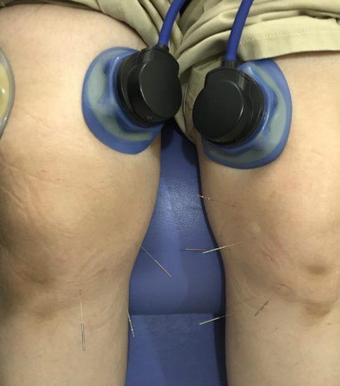 膝関節の痛み治療