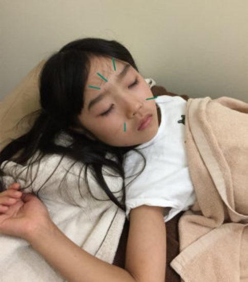 子供の鍼灸