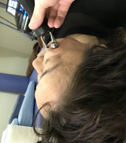 立体動態波で美容施術