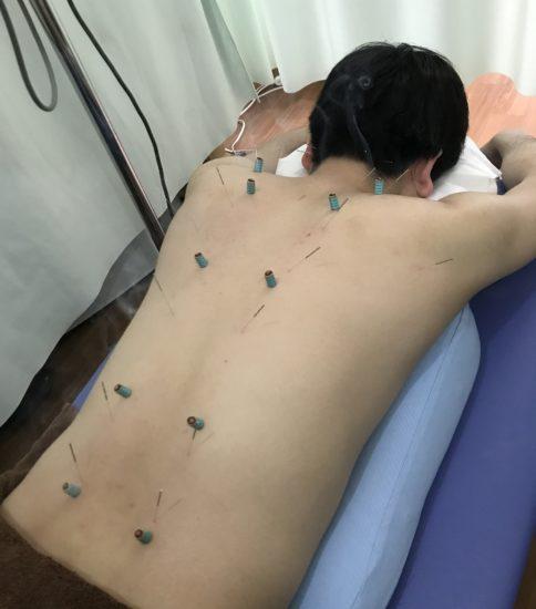 東洋医学で免疫力アップ